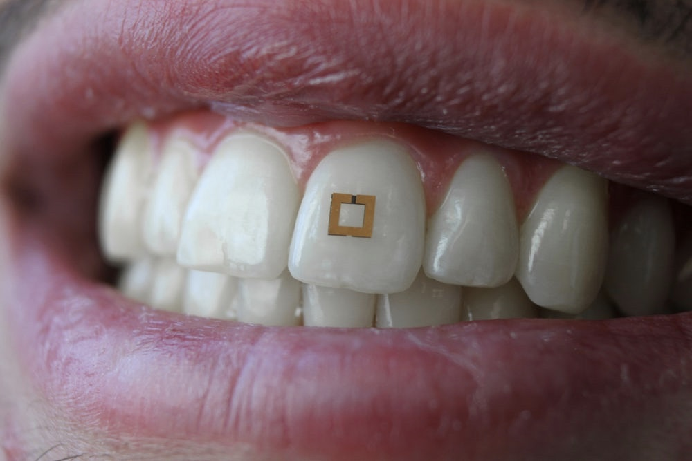 Golden Sensor, On Your Teeth, Tracks What You Eat 1