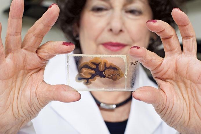 stile attraente originale più votato rapporto qualità-prezzo Einstein's Brain Was Stolen, And Chopped Up