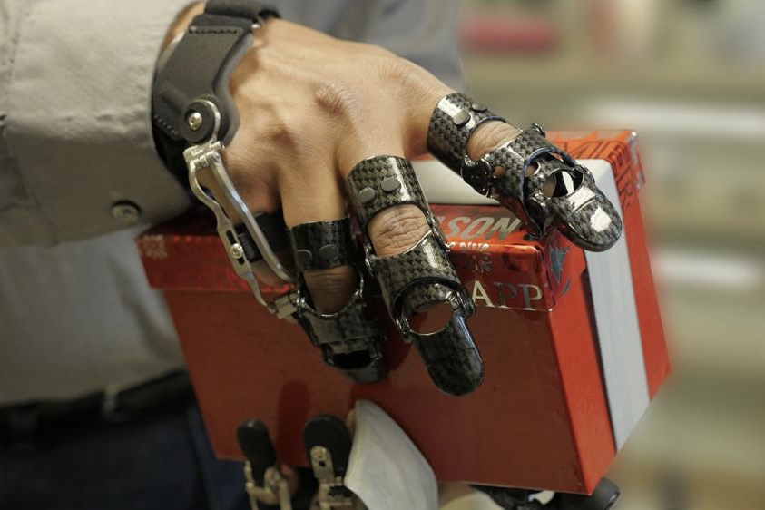 How These Prosthetics Can Make Life Easier... 1