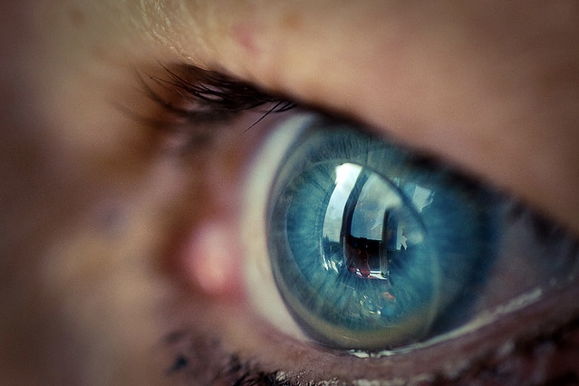 How can AI prevent blindness for millions of people 1