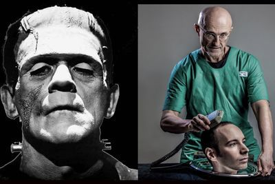 Video: The First Head Transplant Might Be A Bad Idea!