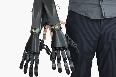 Video: Youbionic's Latest 3d Printed Double Hand