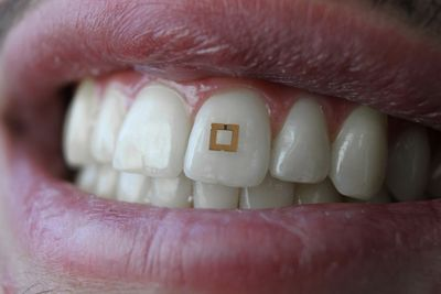 Golden Sensor, On Your Teeth, Tracks What You Eat