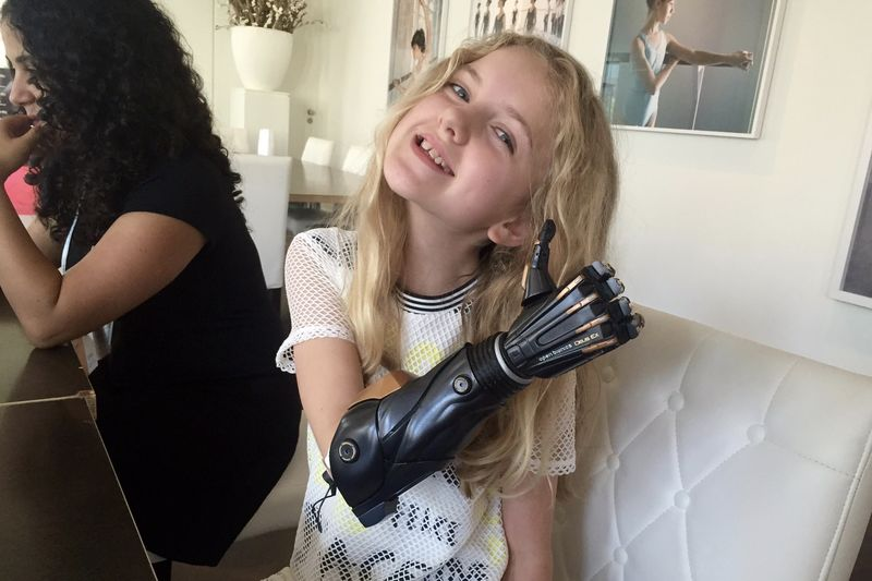 Introducing A New Bionic Arm That Grows With You 1